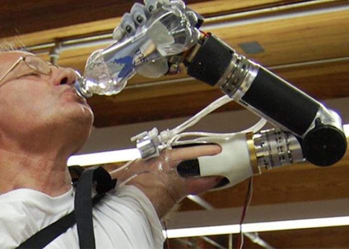 Mobius Bionics DEKA Luke Arm